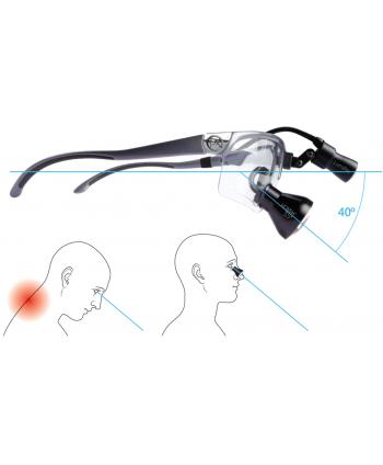 DenMat PeriOptix™ 3.5x HDMax TTL didinamieji akiniai